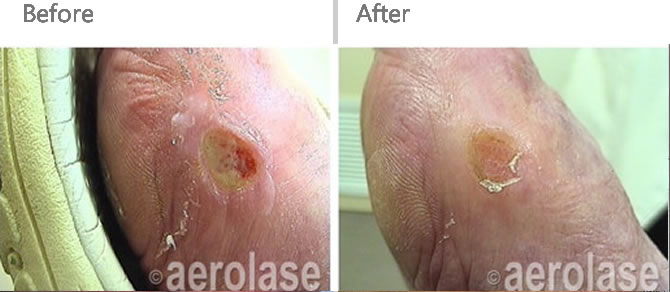 laser-thin-ulcers